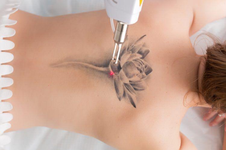 laser-para-eliminar-tatuajes-750x500-1
