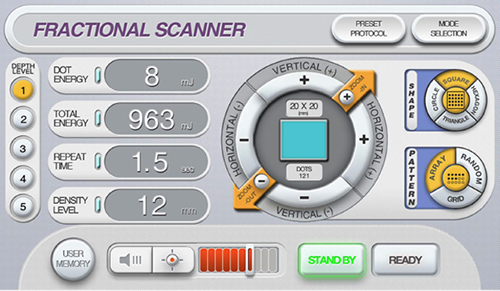 innoscan-fractionnal-scanner