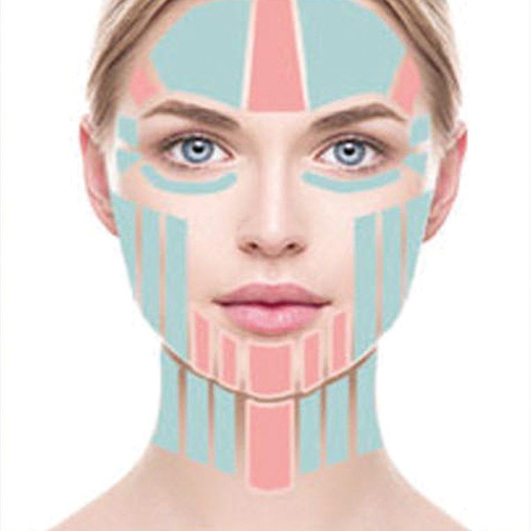 Điều trị xóa nhăn vùng mặt